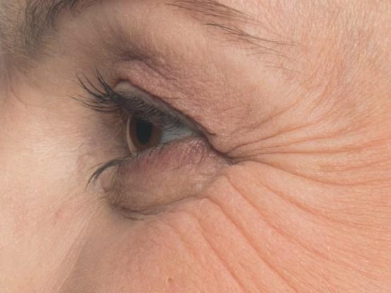 <strong>Krähenfüße (periorbitale Linien)</strong><br> Vor der Behandlung