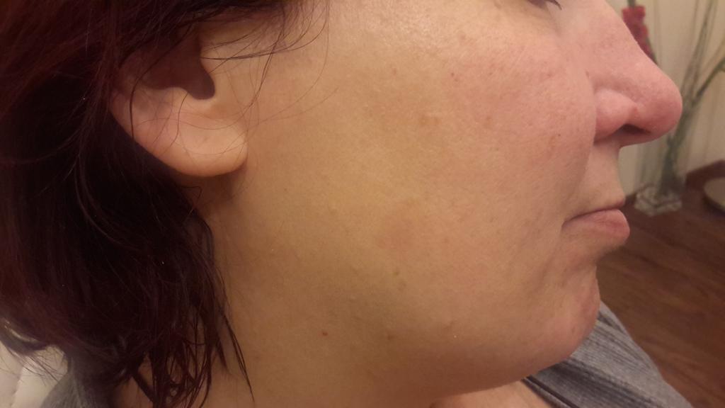 Der weiße Pigmentfleck auf den sexuellen Lippen