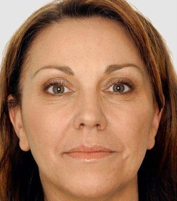 <strong>Botox & Hyaluronfiller im Gesicht</strong><br> Vor Anwendung von Botox und Hyaluronfiller