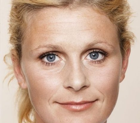 <strong>Botox & Filler im Gesicht</strong><br> Vor der Behandlung