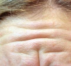 <strong>Stirnfalten</strong><br> Vor der Behandlung mit Botox