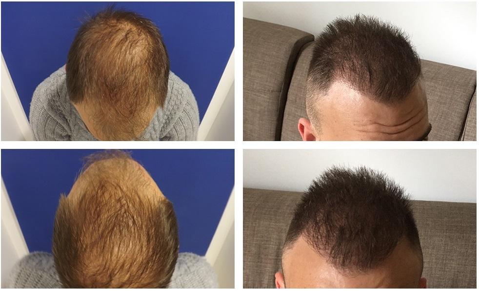 Haarverpflanzung preis