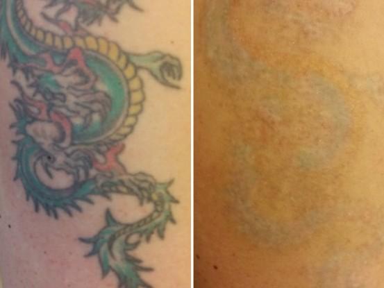 <strong>Mehrfarbiges Tattoo am Oberarm</strong><br> Vorher und nach 5 Behandlungen