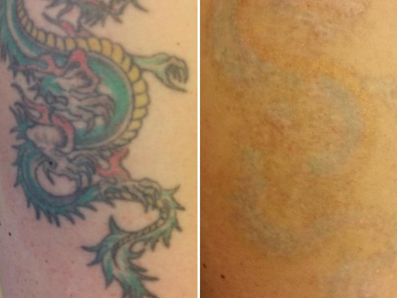 Tattooentfernung Vorher Nachher Bilder Kosten