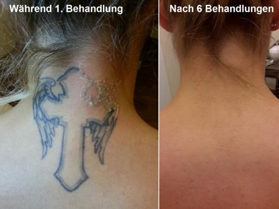 <strong>Tattoo am Nacken Vorher/Nachher</strong><br>