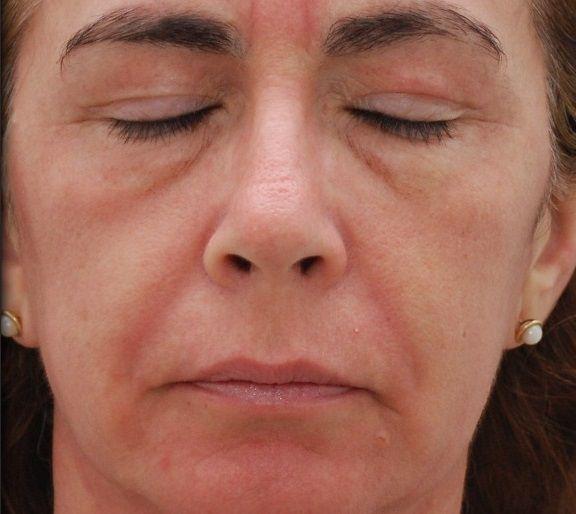 Entfernen kosten österreich xanthelasmen Xanthelasmen Hautveranderungen